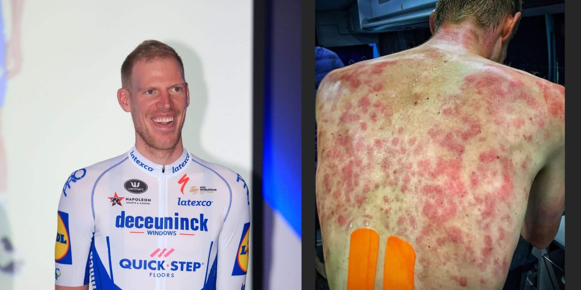 Des grêlons tombent pendant le Critérium du Dauphiné: des coureurs blessés partagent les photos